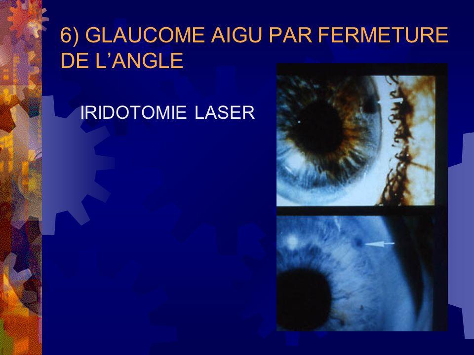 6) GLAUCOME AIGU PAR FERMETURE DE LANGLE IRIDOTOMIE LASER