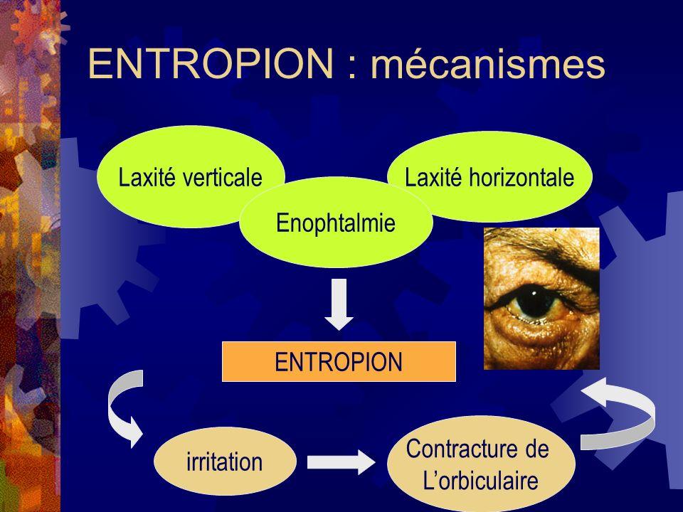 ENTROPION : mécanismes Laxité verticale Laxité horizontale Enophtalmie ENTROPION irritation Contracture de Lorbiculaire