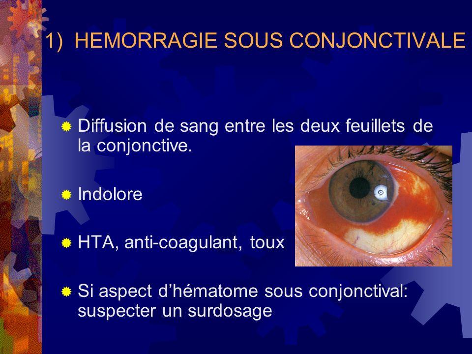 1) HEMORRAGIE SOUS CONJONCTIVALE Diffusion de sang entre les deux feuillets de la conjonctive. Indolore HTA, anti-coagulant, toux Si aspect dhématome