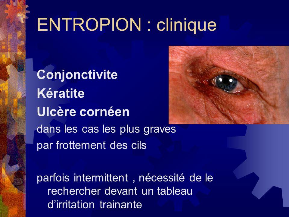 ENTROPION : clinique Conjonctivite Kératite Ulcère cornéen dans les cas les plus graves par frottement des cils parfois intermittent, nécessité de le