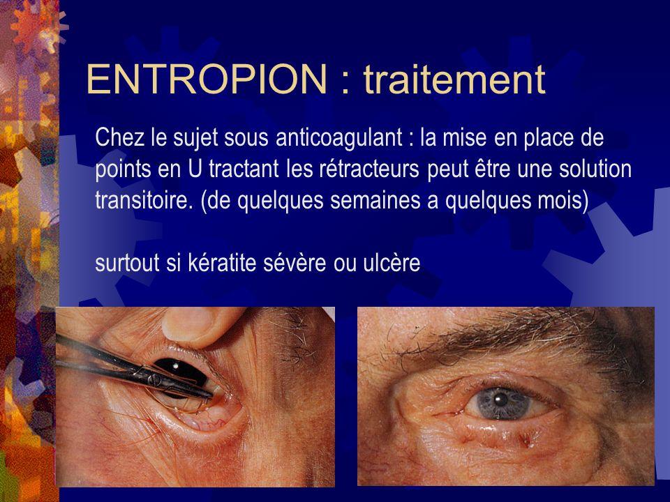 Chez le sujet sous anticoagulant : la mise en place de points en U tractant les rétracteurs peut être une solution transitoire. (de quelques semaines