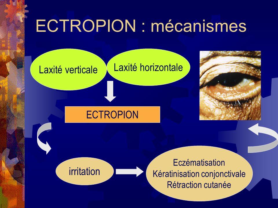 ECTROPION : mécanismes Laxité verticale Laxité horizontale ECTROPION irritation Eczématisation Kératinisation conjonctivale Rétraction cutanée