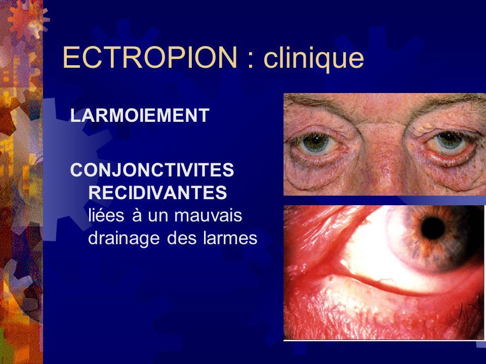 ECTROPION : clinique LARMOIEMENT CONJONCTIVITES RECIDIVANTES liées à un mauvais drainage des larmes