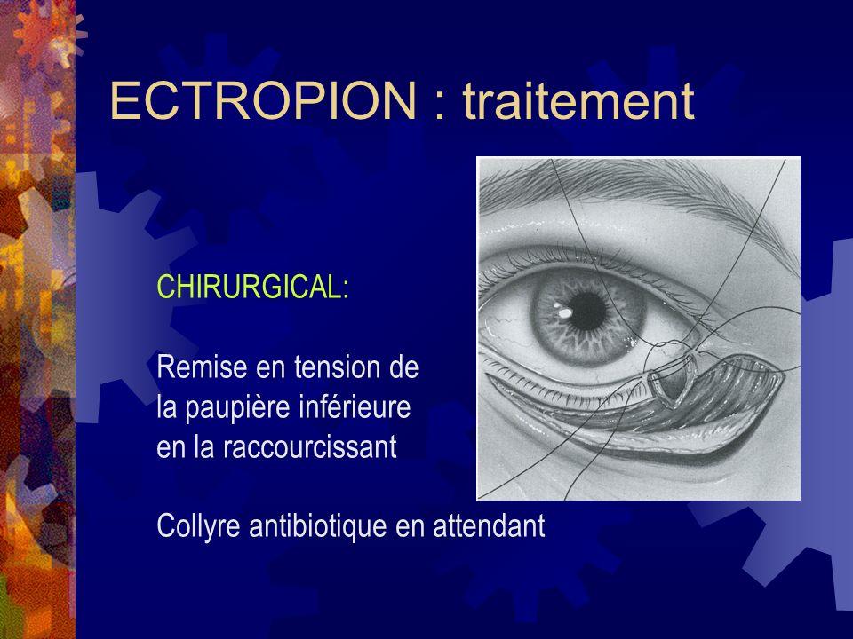 ECTROPION : traitement CHIRURGICAL: Remise en tension de la paupière inférieure en la raccourcissant Collyre antibiotique en attendant
