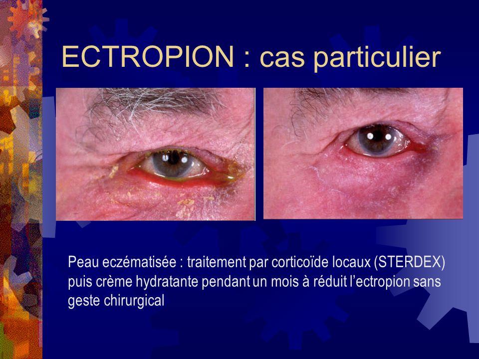 ECTROPION : cas particulier Peau eczématisée : traitement par corticoïde locaux (STERDEX) puis crème hydratante pendant un mois à réduit lectropion sa