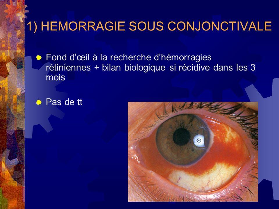 1) HEMORRAGIE SOUS CONJONCTIVALE Fond dœil à la recherche dhémorragies rétiniennes + bilan biologique si récidive dans les 3 mois Pas de tt
