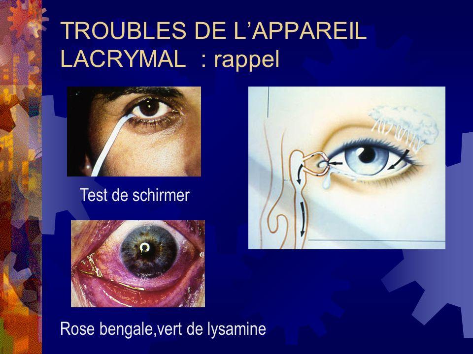 TROUBLES DE LAPPAREIL LACRYMAL : rappel Test de schirmer Rose bengale,vert de lysamine