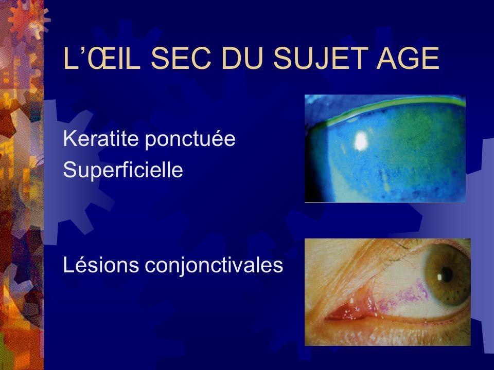 LŒIL SEC DU SUJET AGE Keratite ponctuée Superficielle Lésions conjonctivales