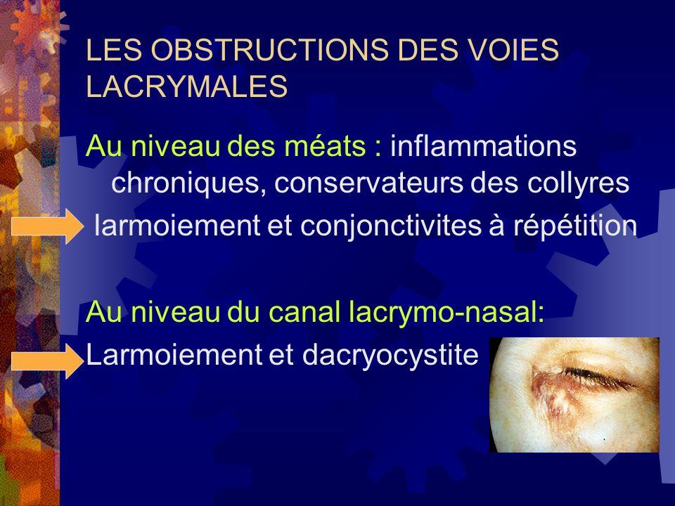 LES OBSTRUCTIONS DES VOIES LACRYMALES Au niveau des méats : inflammations chroniques, conservateurs des collyres larmoiement et conjonctivites à répét