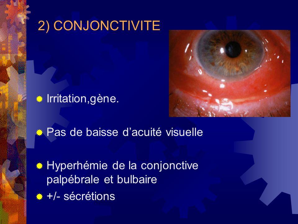 2) CONJONCTIVITE Irritation,gène. Pas de baisse dacuité visuelle Hyperhémie de la conjonctive palpébrale et bulbaire +/- sécrétions