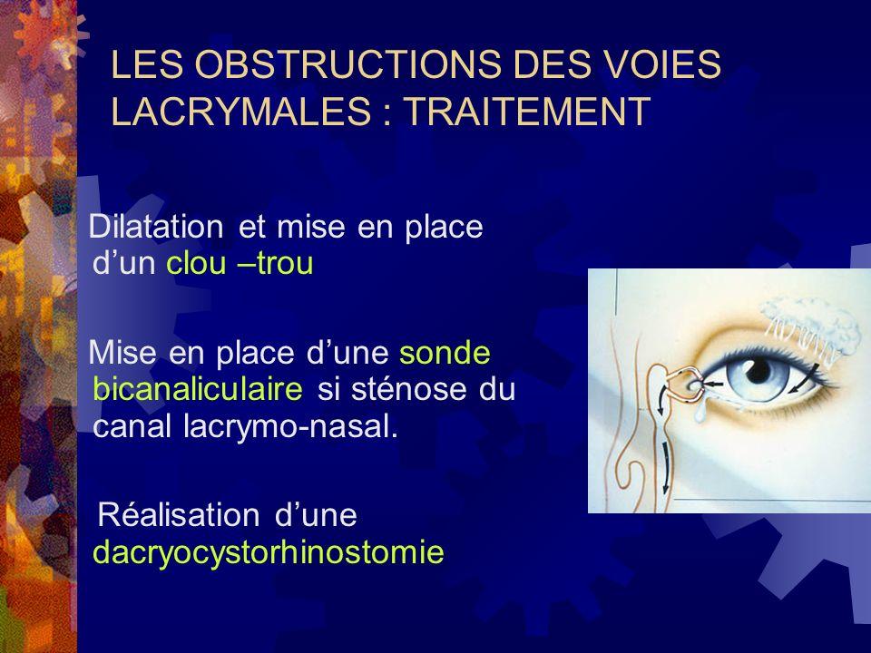 LES OBSTRUCTIONS DES VOIES LACRYMALES : TRAITEMENT Dilatation et mise en place dun clou –trou Mise en place dune sonde bicanaliculaire si sténose du c