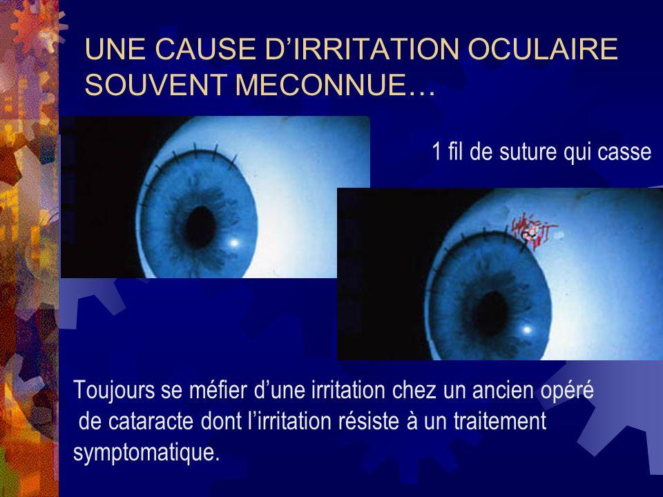 UNE CAUSE DIRRITATION OCULAIRE SOUVENT MECONNUE… Toujours se méfier dune irritation chez un ancien opéré de cataracte dont lirritation résiste à un tr