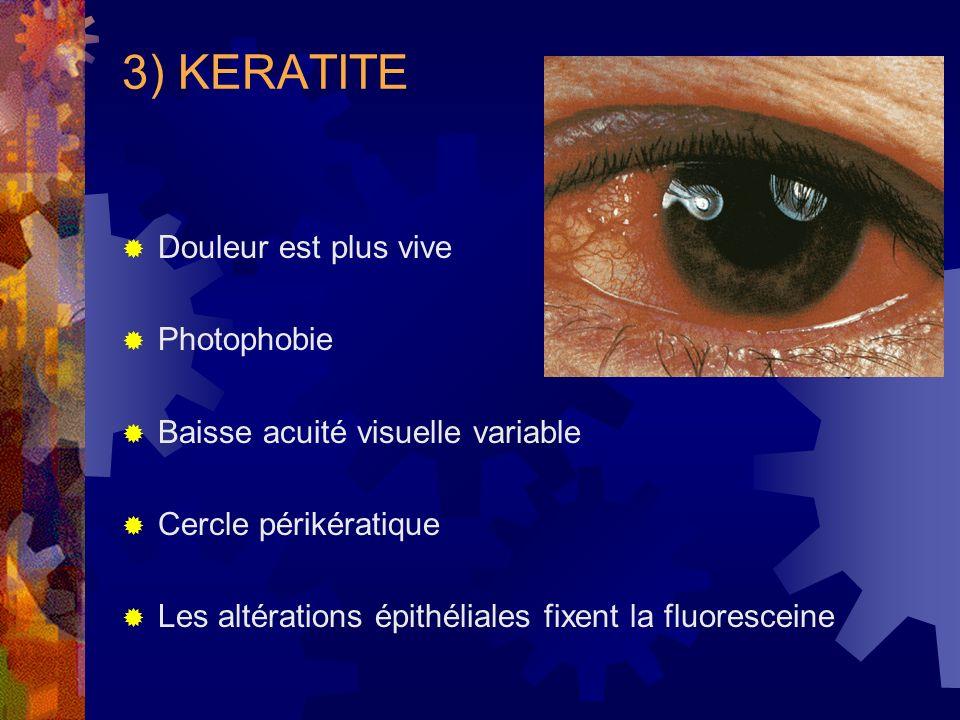 3) KERATITE Douleur est plus vive Photophobie Baisse acuité visuelle variable Cercle périkératique Les altérations épithéliales fixent la fluoresceine