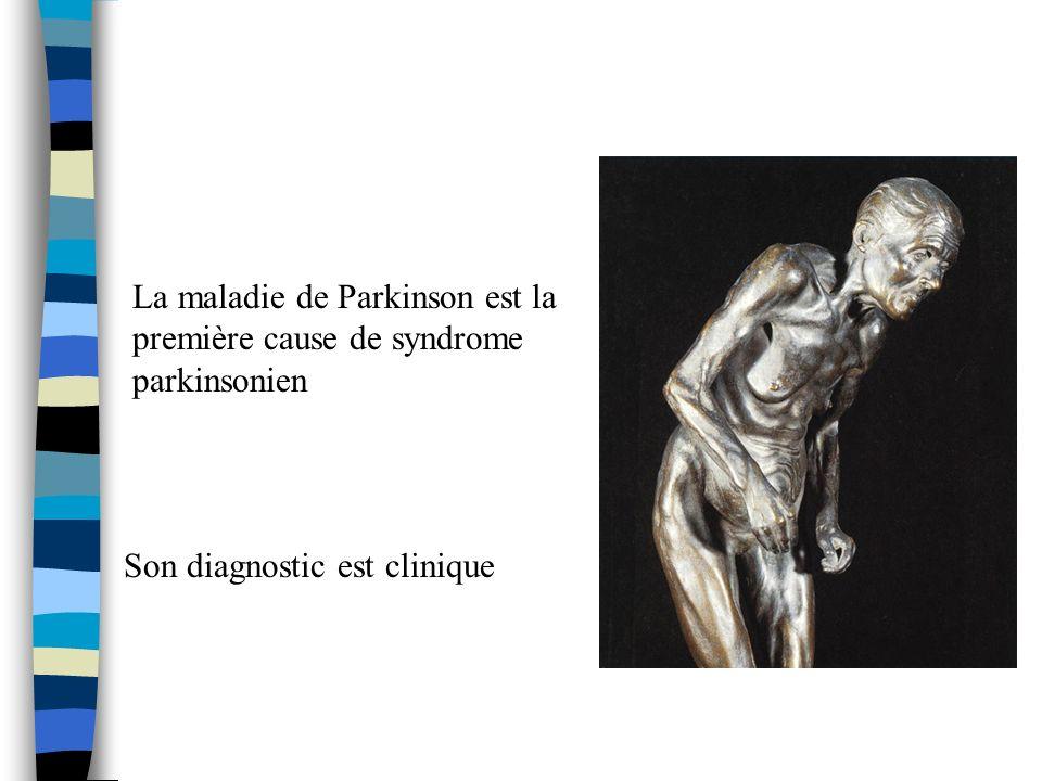La maladie de Parkinson est la première cause de syndrome parkinsonien Son diagnostic est clinique