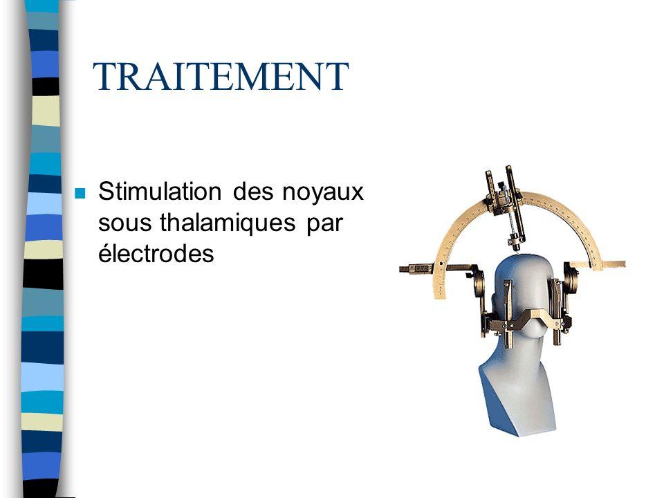 TRAITEMENT n Stimulation des noyaux sous thalamiques par électrodes