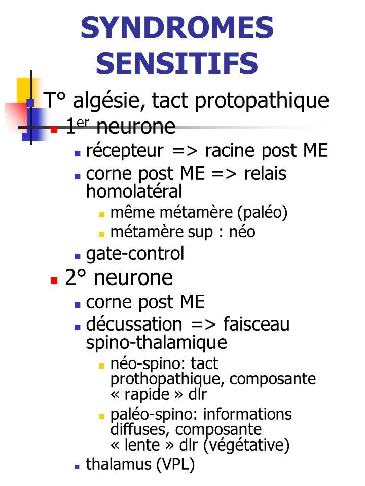 SYNDROMES SENSITIFS T° algésie, tact protopathique 1 er neurone récepteur => racine post ME corne post ME => relais homolatéral même métamère (paléo)