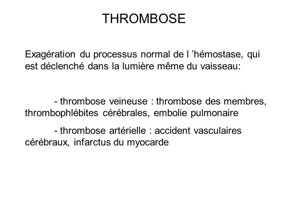 THROMBOSE Exagération du processus normal de l hémostase, qui est déclenché dans la lumière même du vaisseau: - thrombose veineuse : thrombose des mem
