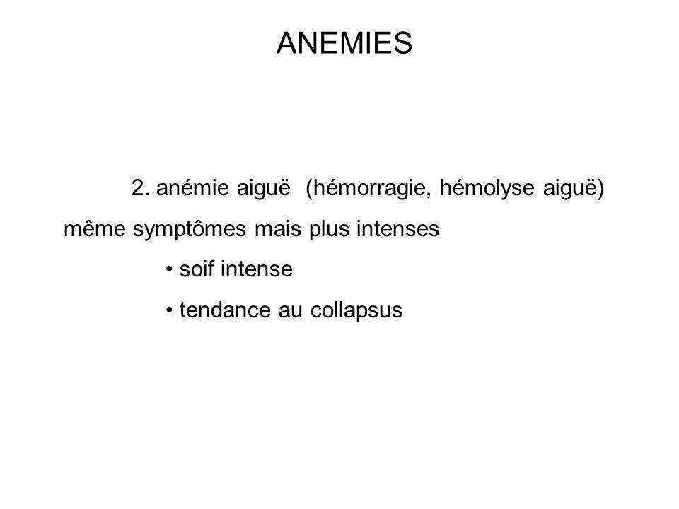 ANEMIES 2. anémie aiguë (hémorragie, hémolyse aiguë) même symptômes mais plus intenses soif intense tendance au collapsus