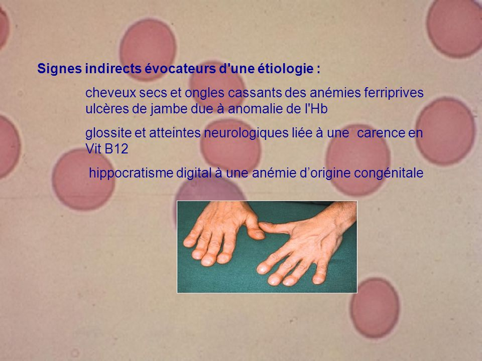 Signes indirects évocateurs d'une étiologie : cheveux secs et ongles cassants des anémies ferriprives ulcères de jambe due à anomalie de l'Hb glossite