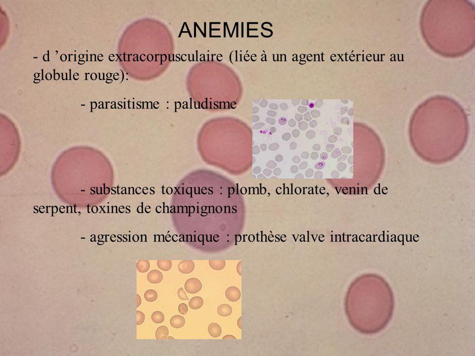 ANEMIES - d origine extracorpusculaire (liée à un agent extérieur au globule rouge): - parasitisme : paludisme - substances toxiques : plomb, chlorate