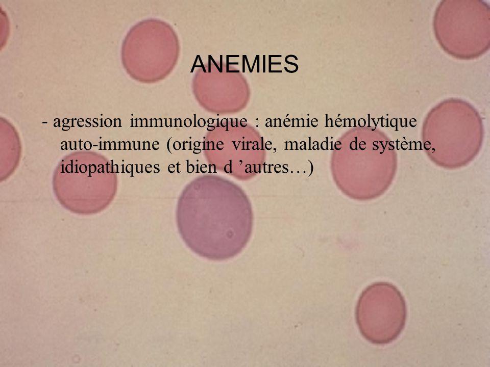ANEMIES - agression immunologique : anémie hémolytique auto-immune (origine virale, maladie de système, idiopathiques et bien d autres…)