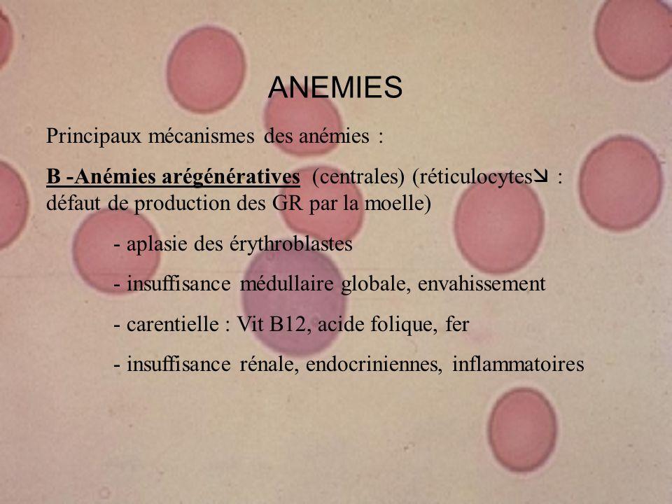 ANEMIES Principaux mécanismes des anémies : B -Anémies arégénératives (centrales) (réticulocytes : défaut de production des GR par la moelle) - aplasi