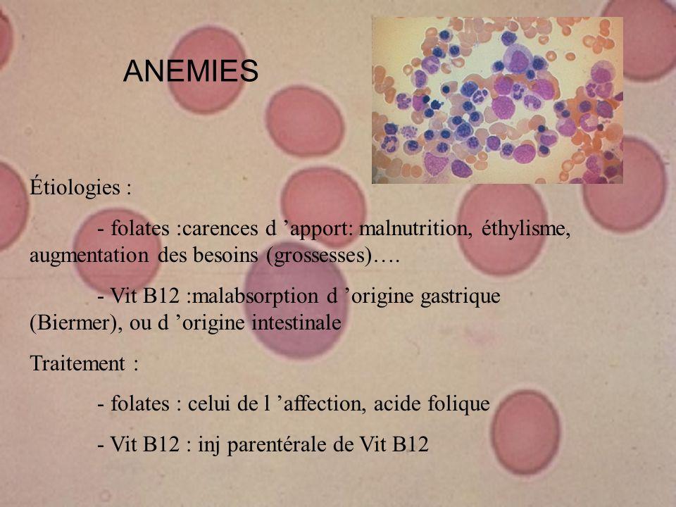 ANEMIES Étiologies : - folates :carences d apport: malnutrition, éthylisme, augmentation des besoins (grossesses)…. - Vit B12 :malabsorption d origine