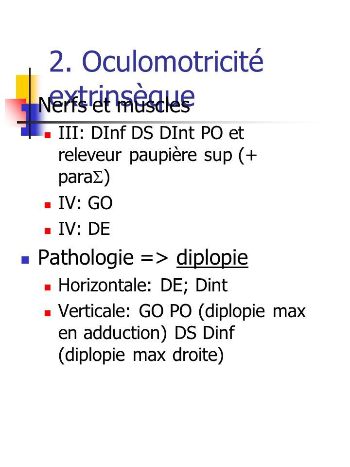 2. Oculomotricité extrinsèque Nerfs et muscles III: DInf DS DInt PO et releveur paupière sup (+ para ) IV: GO IV: DE Pathologie => diplopie Horizontal