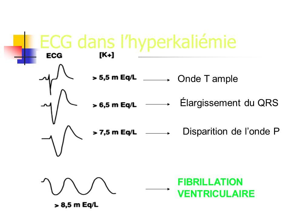 ECG dans lhyperkaliémie Onde T ample Élargissement du QRS Disparition de londe P FIBRILLATION VENTRICULAIRE