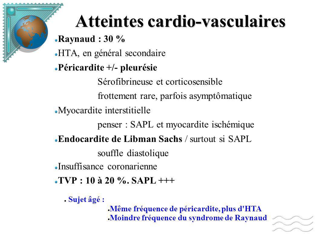 Atteintes cardio-vasculaires Raynaud : 30 % HTA, en général secondaire Péricardite +/- pleurésie Sérofibrineuse et corticosensible frottement rare, parfois asymptômatique Myocardite interstitielle penser : SAPL et myocardite ischémique Endocardite de Libman Sachs / surtout si SAPL souffle diastolique Insuffisance coronarienne TVP : 10 à 20 %.