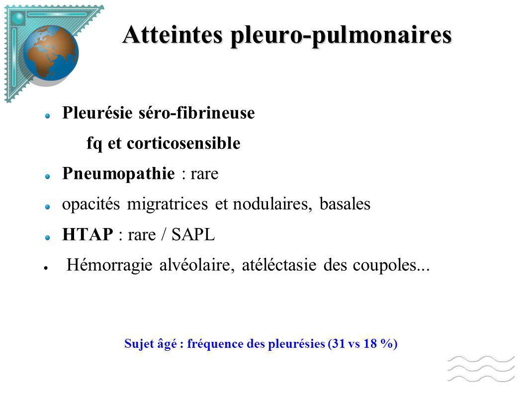 Atteintes pleuro-pulmonaires Pleurésie séro-fibrineuse fq et corticosensible Pneumopathie : rare opacités migratrices et nodulaires, basales HTAP : rare / SAPL Hémorragie alvéolaire, atéléctasie des coupoles...