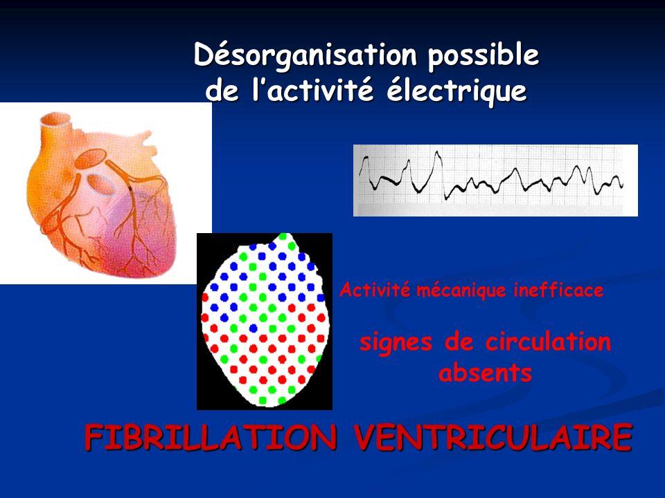 Désorganisation possible de lactivité électrique Activité mécanique inefficace signes de circulation absents FIBRILLATION VENTRICULAIRE
