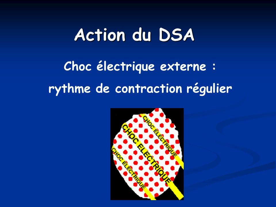 Choc électrique externe : rythme de contraction régulier Action du DSA