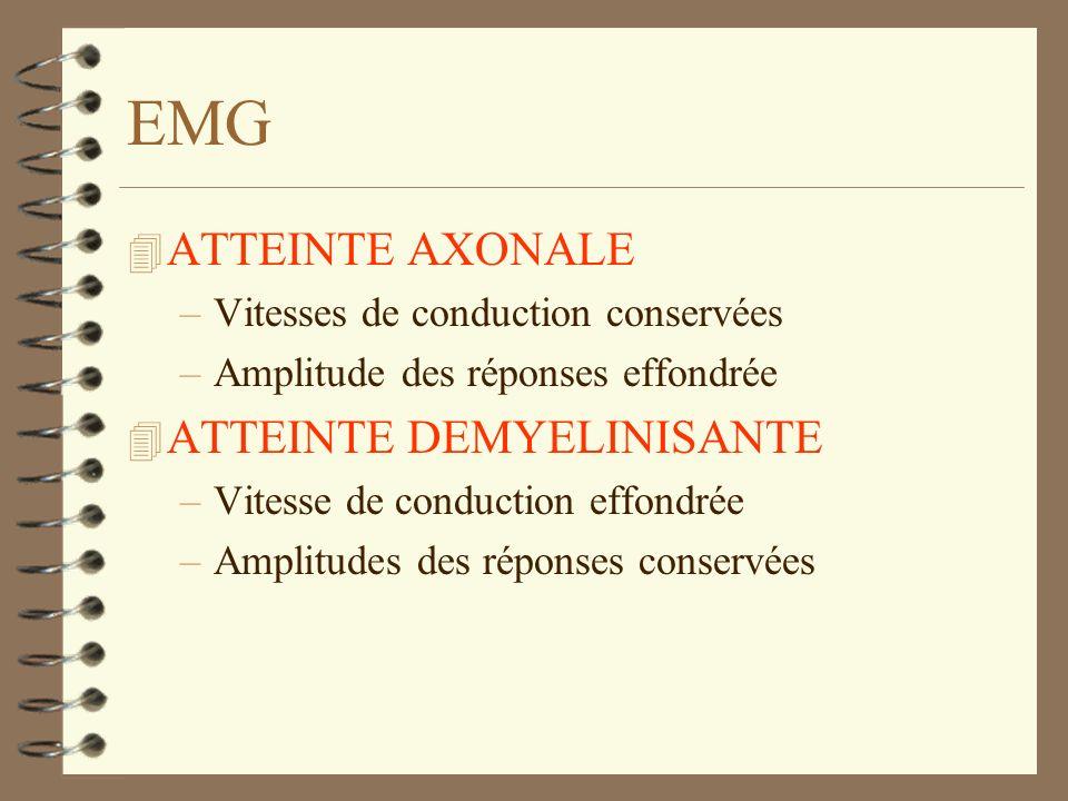 EMG 4 ATTEINTE AXONALE –Vitesses de conduction conservées –Amplitude des réponses effondrée 4 ATTEINTE DEMYELINISANTE –Vitesse de conduction effondrée
