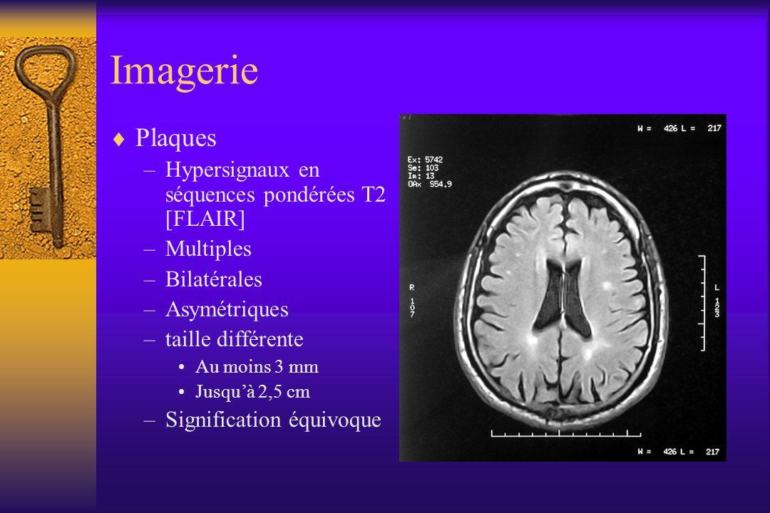 Imagerie Plaques –Hypersignaux en séquences pondérées T2 [FLAIR] –Multiples –Bilatérales –Asymétriques –taille différente Au moins 3 mm Jusquà 2,5 cm