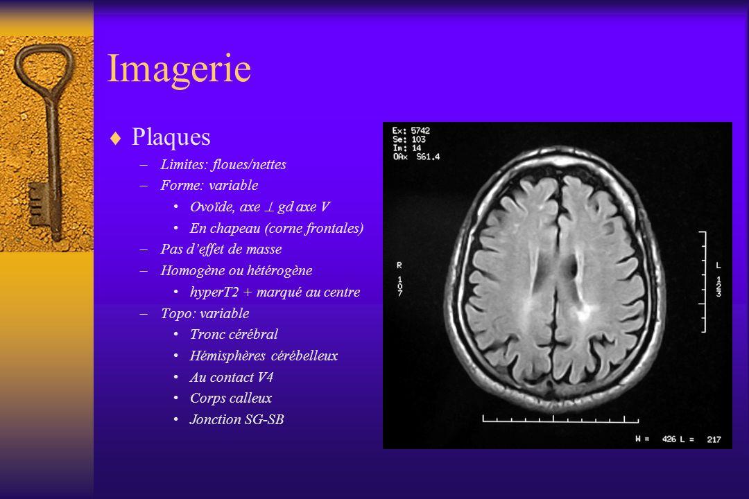 Imagerie Plaques –Limites: floues/nettes –Forme: variable Ovoïde, axe gd axe V En chapeau (corne frontales) –Pas deffet de masse –Homogène ou hétérogè