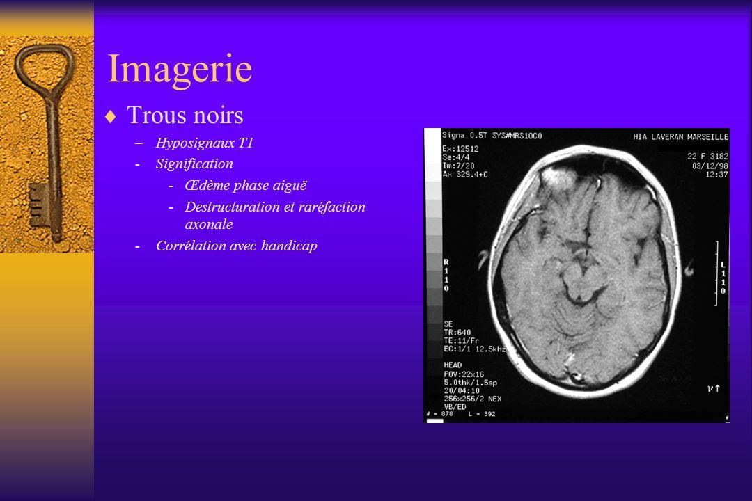 Trous noirs –Hyposignaux T1 -Signification -Œdème phase aiguë -Destructuration et raréfaction axonale -Corrélation avec handicap