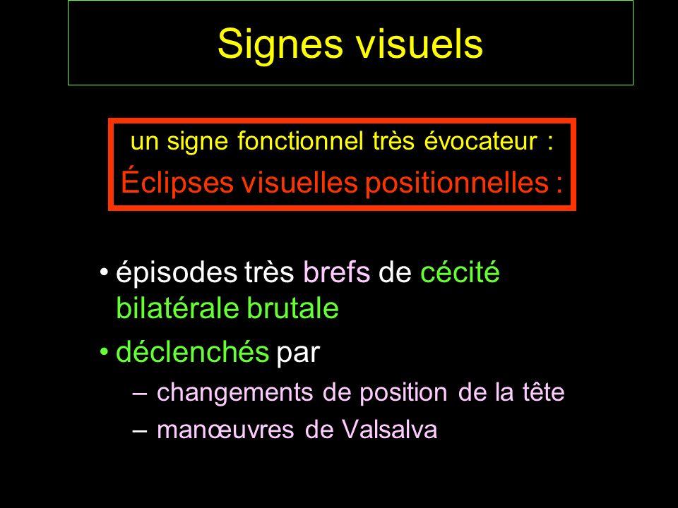 Signes visuels épisodes très brefs de cécité bilatérale brutale déclenchés par – changements de position de la tête – manœuvres de Valsalva un signe f