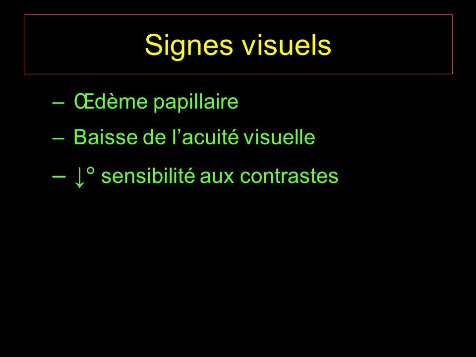 Signes visuels – Œdème papillaire – Baisse de lacuité visuelle – sensibilité aux contrastes