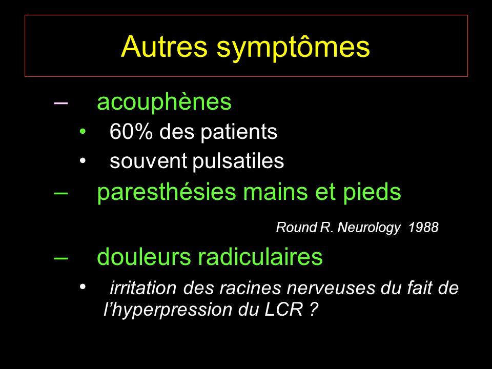 Autres symptômes – acouphènes 60% des patients souvent pulsatiles – paresthésies mains et pieds Round R. Neurology 1988 – douleurs radiculaires irrita