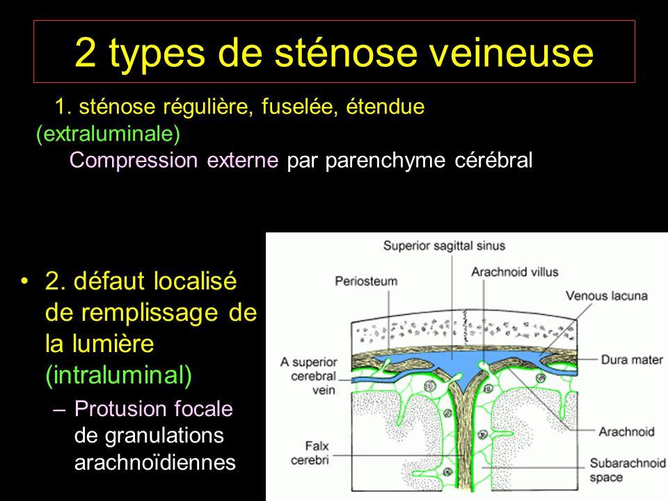 2 types de sténose veineuse 2. défaut localisé de remplissage de la lumière (intraluminal) –Protusion focale de granulations arachnoïdiennes 1. sténos