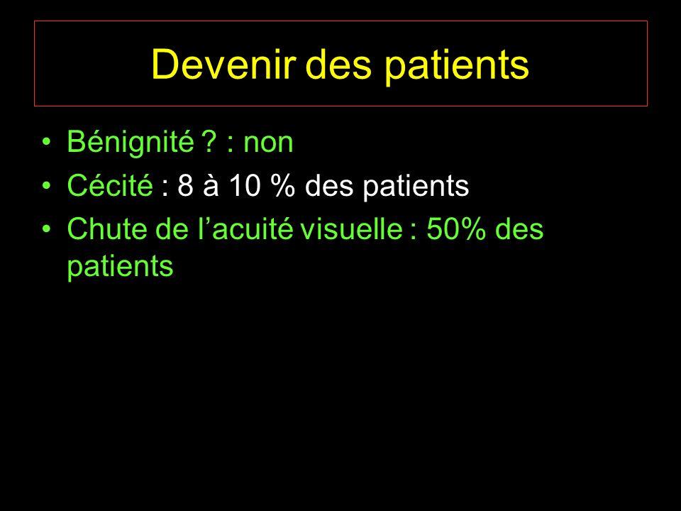 Devenir des patients Bénignité ? : non Cécité : 8 à 10 % des patients Chute de lacuité visuelle : 50% des patients