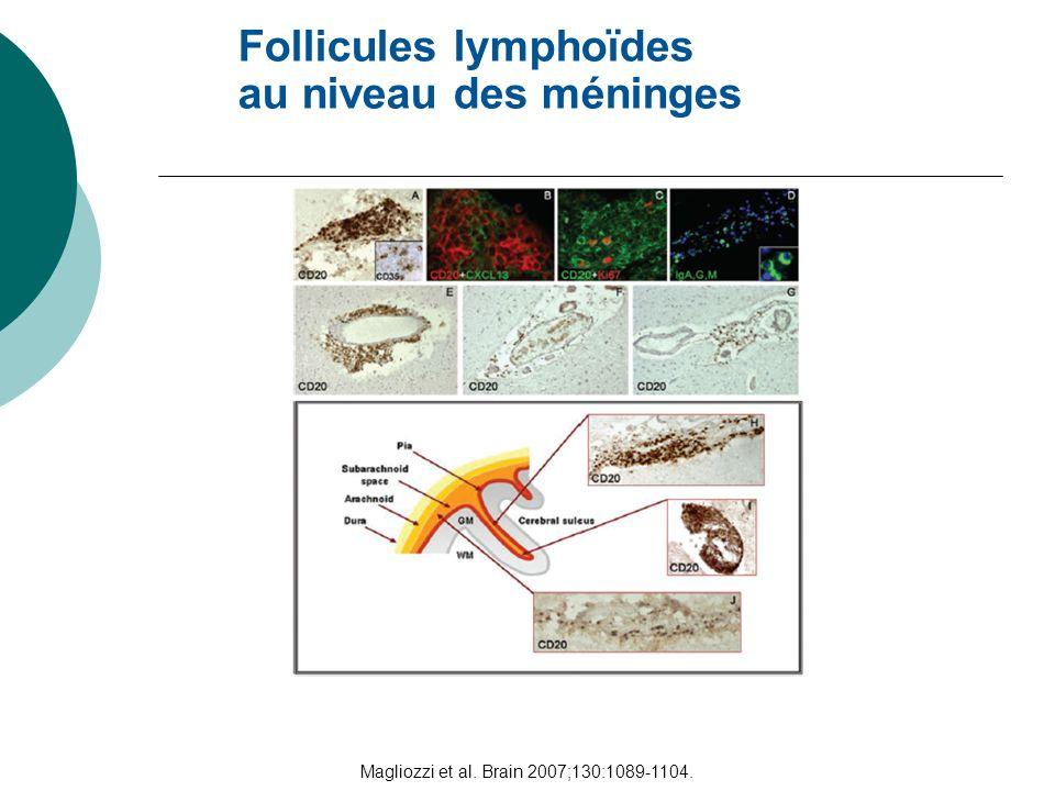 Magliozzi et al. Brain 2007;130:1089-1104. Follicules lymphoïdes au niveau des méninges