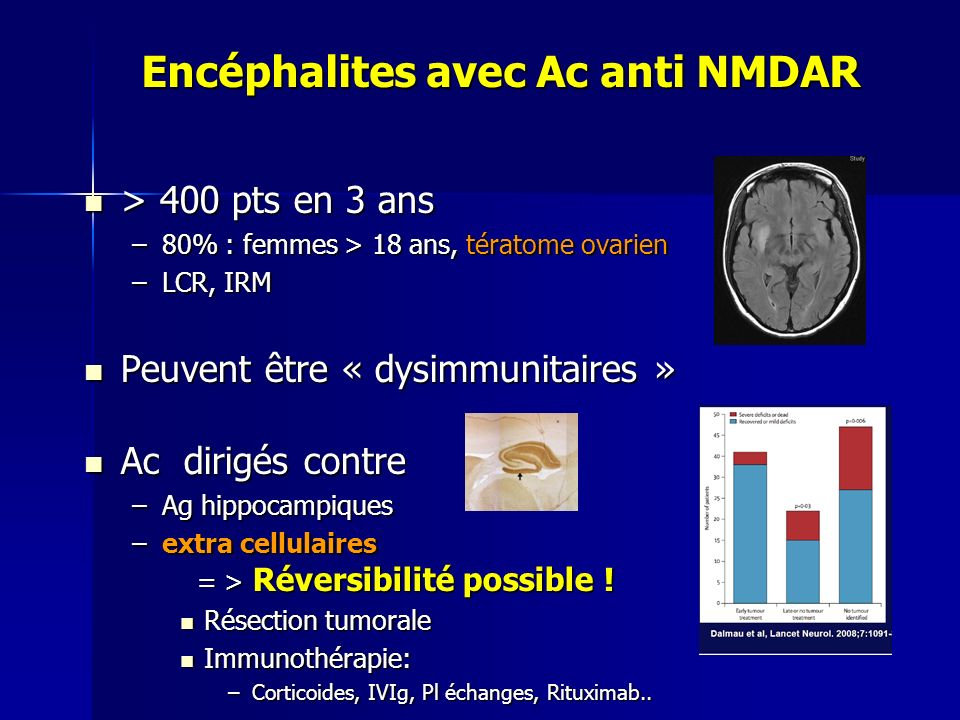Encéphalites avec Ac anti NMDAR Encéphalites avec Ac anti NMDAR > 400 pts en 3 ans > 400 pts en 3 ans –80% : femmes > 18 ans, tératome ovarien –LCR, I