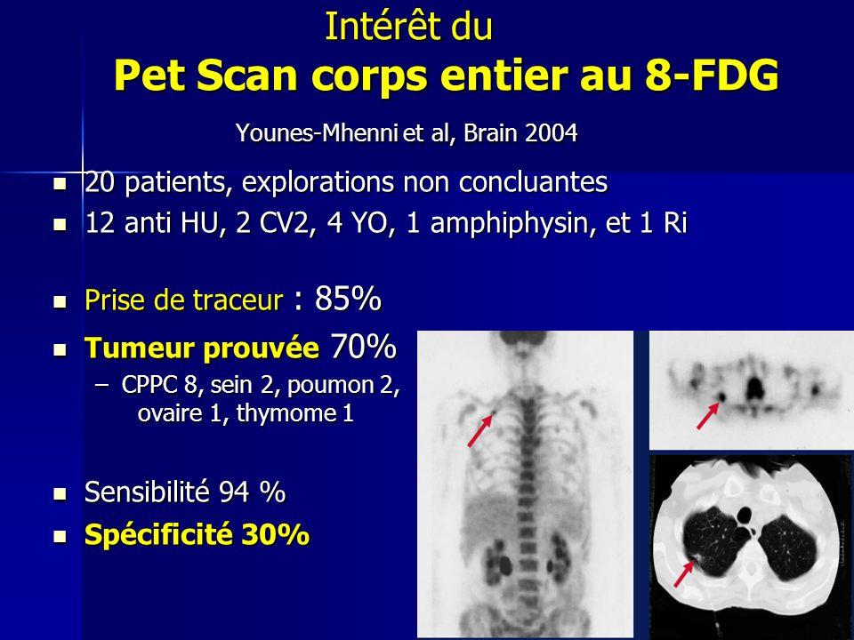 Intérêt du Pet Scan corps entier au 8-FDG Younes-Mhenni et al, Brain 2004 Intérêt du Pet Scan corps entier au 8-FDG Younes-Mhenni et al, Brain 2004 20