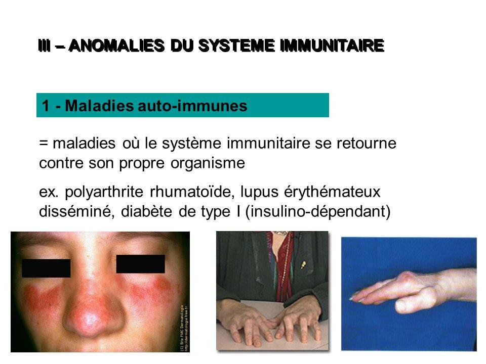 III – ANOMALIES DU SYSTEME IMMUNITAIRE = maladies où le système immunitaire se retourne contre son propre organisme ex. polyarthrite rhumatoïde, lupus