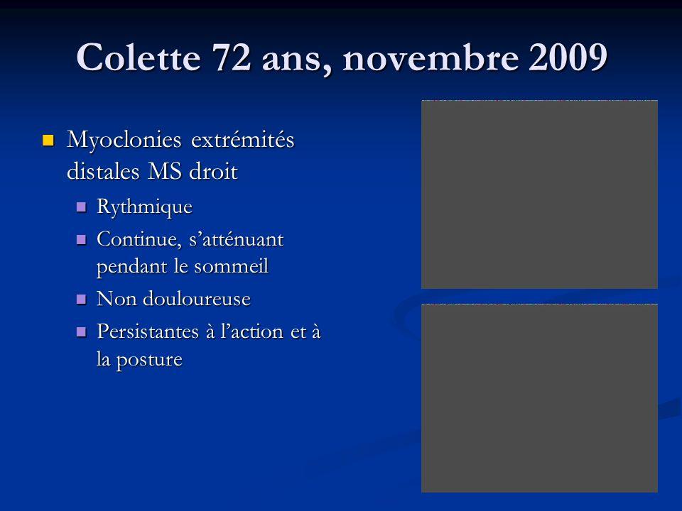 Colette 72 ans, novembre 2009 Myoclonies extrémités distales MS droit Myoclonies extrémités distales MS droit Rythmique Rythmique Continue, satténuant