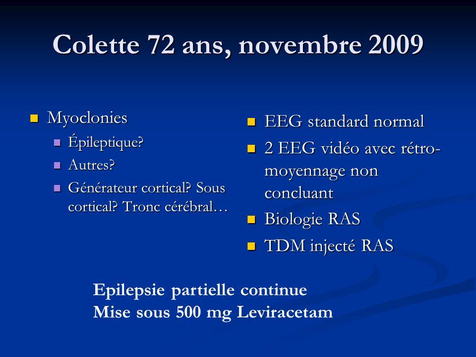 Colette 72 ans, novembre 2009 Myoclonies Myoclonies Épileptique? Épileptique? Autres? Autres? Générateur cortical? Sous cortical? Tronc cérébral… Géné
