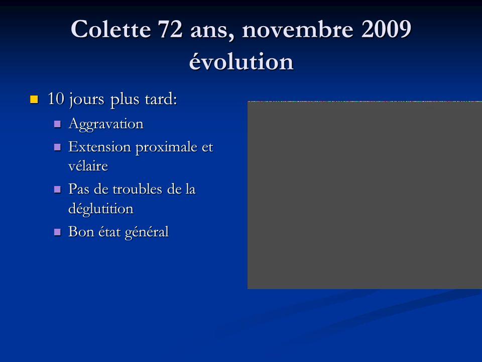 Colette 72 ans, novembre 2009 évolution 10 jours plus tard: 10 jours plus tard: Aggravation Aggravation Extension proximale et vélaire Extension proxi