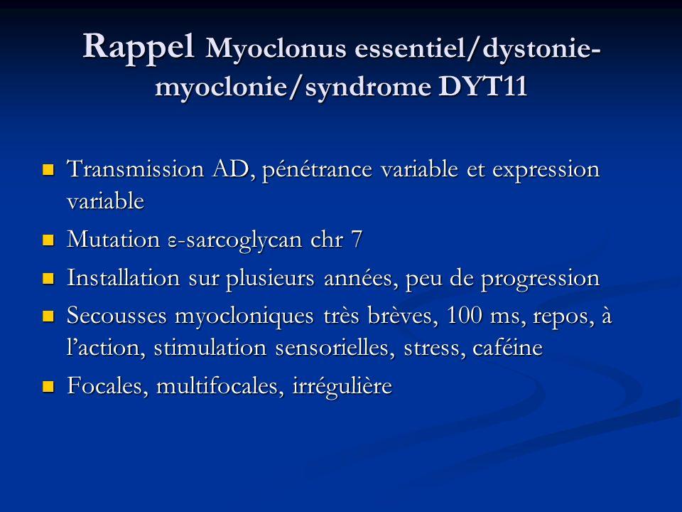 Rappel Myoclonus essentiel/dystonie- myoclonie/syndrome DYT11 Transmission AD, pénétrance variable et expression variable Transmission AD, pénétrance